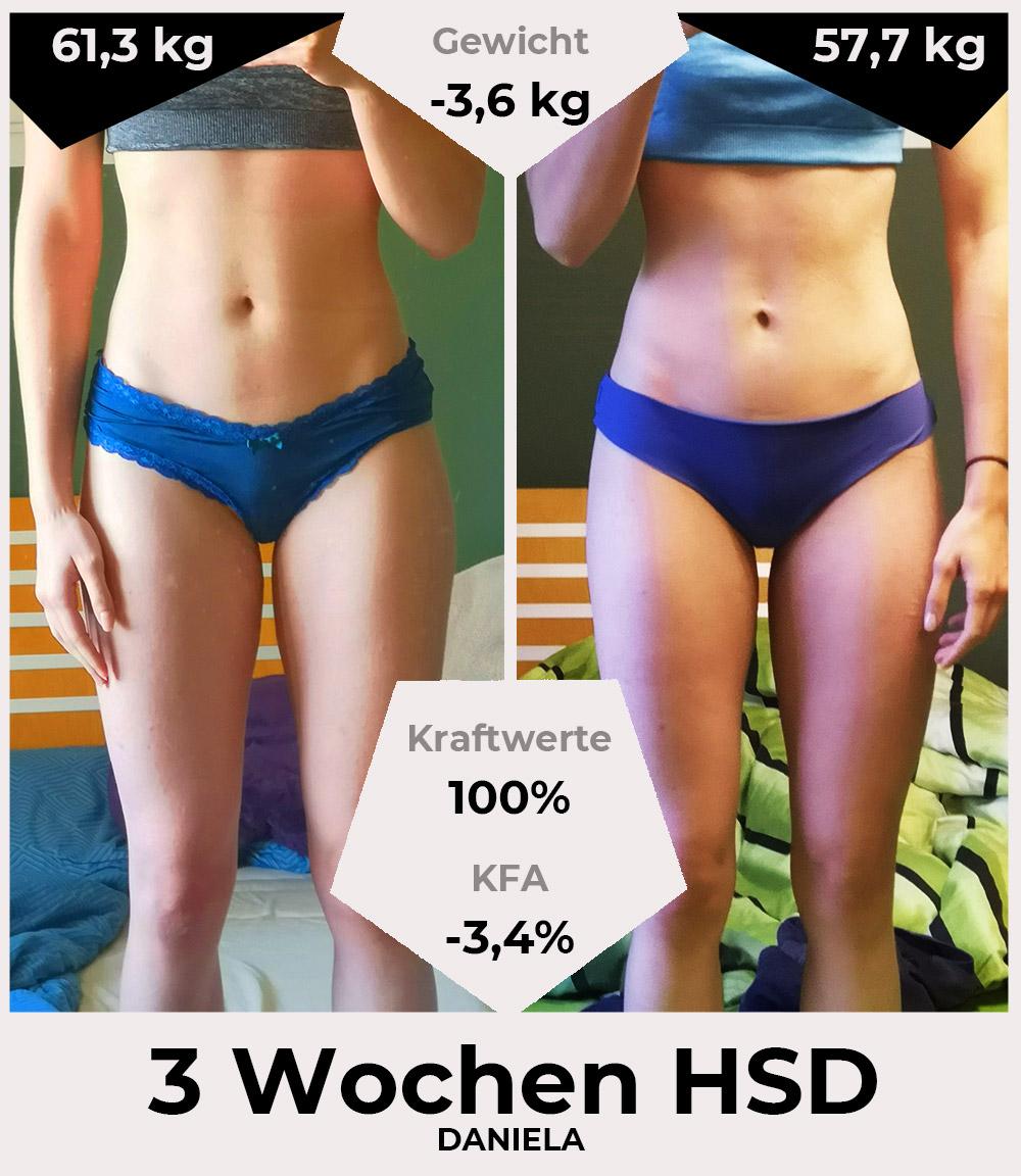 Daniela vor und nach der HSD